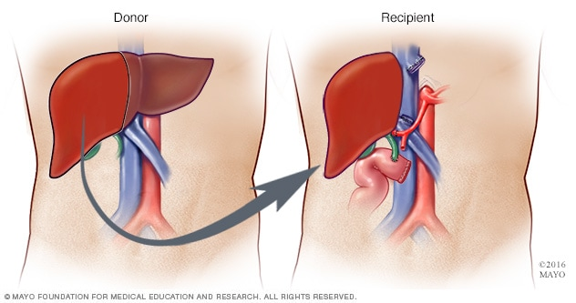 Living-donor liver procedure