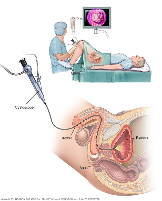 Cystoscopy exam for a man