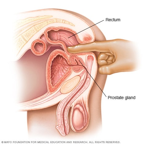 Illustration showing a digital rectal exam