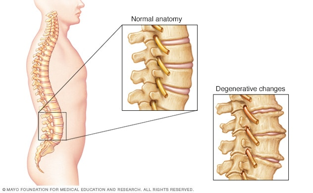 Bone spurs and narrowed disks in the spine