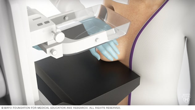 Photo of woman undergoing mammography exam