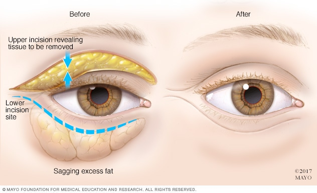Illustration of how blepharoplasty is done
