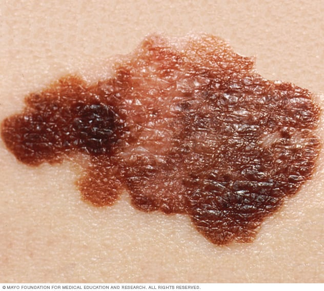 Melanoma photo