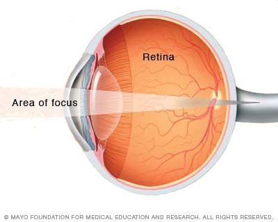 Illustration showing farsightedness (hyperopia)