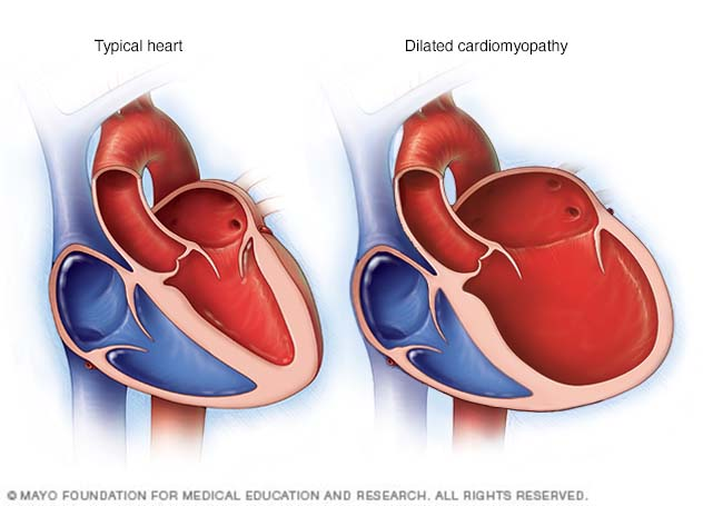 Illustration showing dilated cardiomyopathy