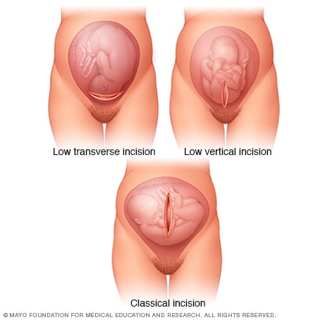 Illustration of uterine incisions used during C-sections