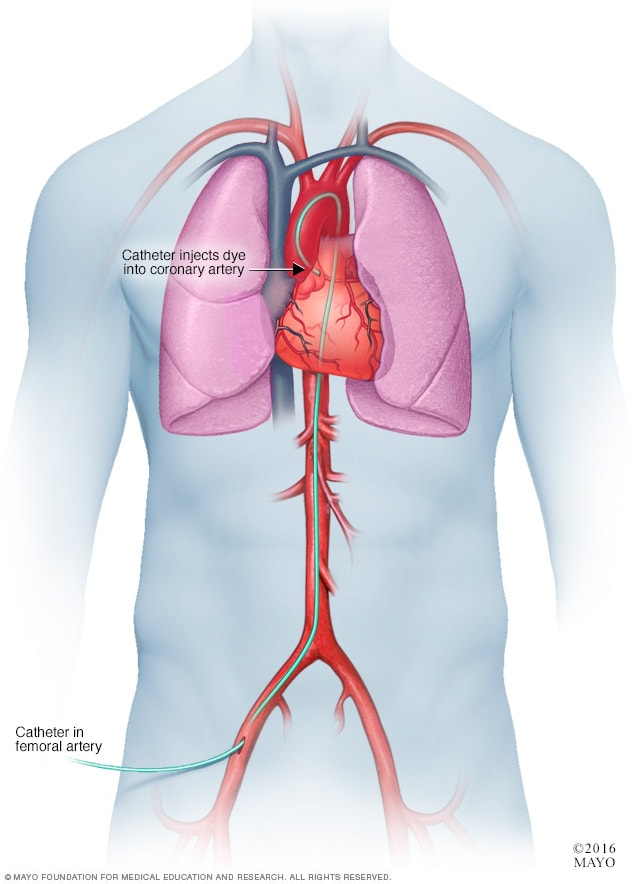Illustration showing catheterization for a coronary angiogram