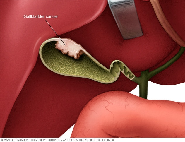 Illustration of gallbladder cancer