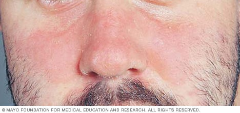 Image showing seborrheic dermatitis on the face