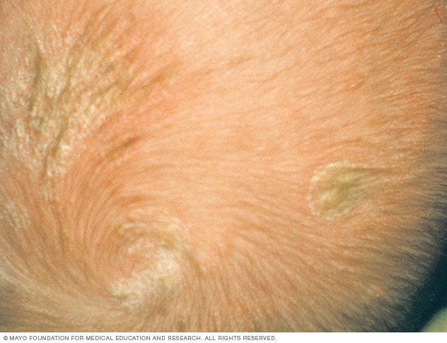 Cradle cap on light skin