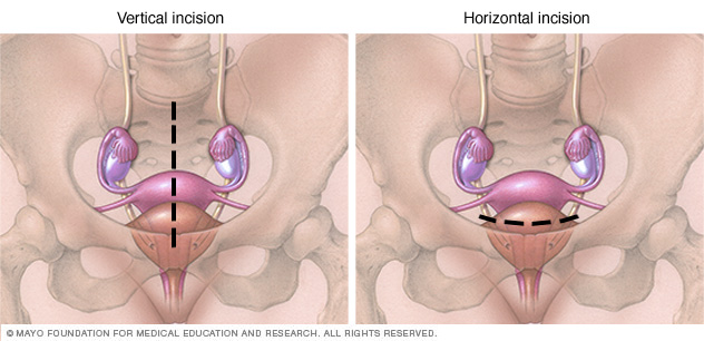 Vertical, horizontal abdominal hysterectomy incisions