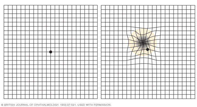 Illustration showing Amsler grid