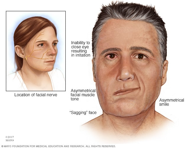 Illustration showing facial weakness