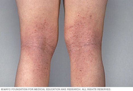 Image showing atopic dermatitis on the legs