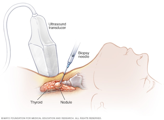 Illustration of needle biopsy of thyroid cancer