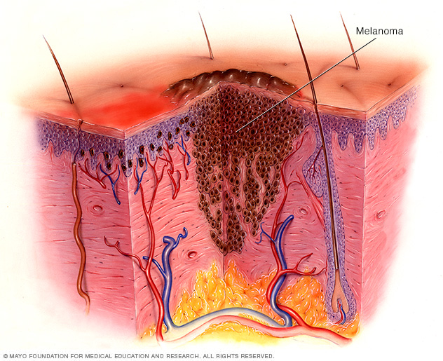 Illustration of melanoma