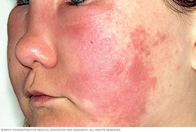 facial swelling and hives