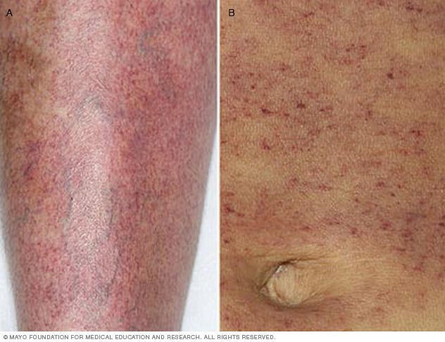 Photograph of petechiae on leg and abdomen