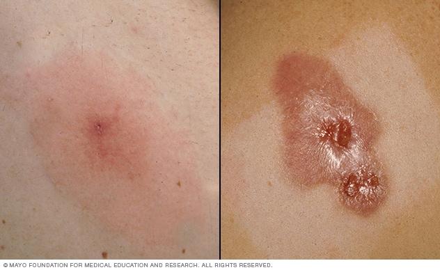 staph infections infection mrsa staphylococcus aureus minor bumps start painful