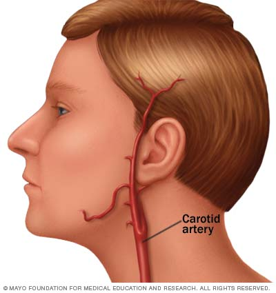 Illustration of carotid artery