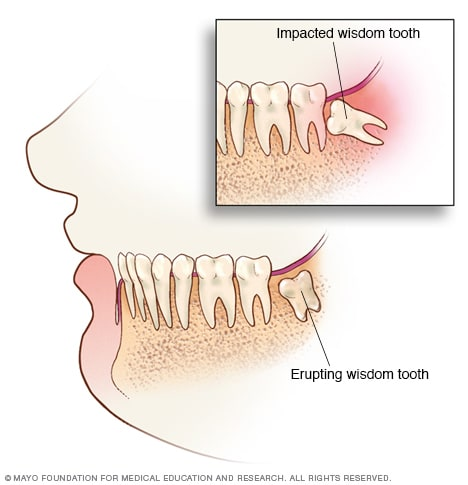 Illustration showing erupting and impacted wisdom teeth