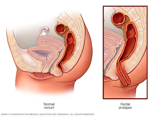 Illustration showing normal rectum and rectal prolapse