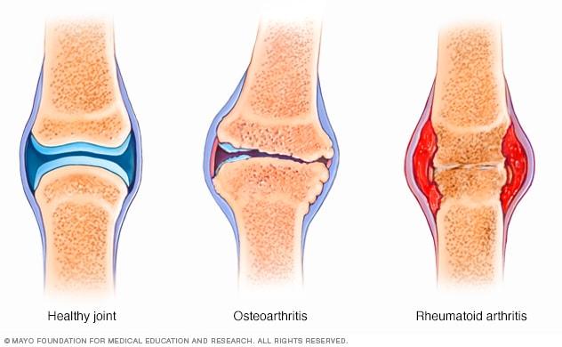 Rheumatoid arthritis vs. osteoarthritis - Mayo Clinic