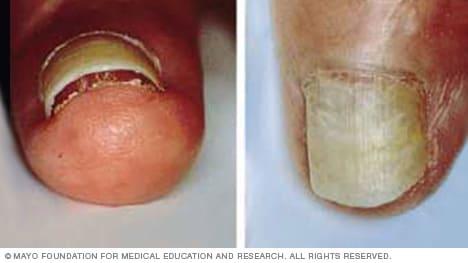 Photo of nail separation