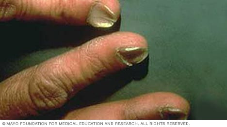 Slide Show 7 Fingernail Problems Not To Ignore Mayo Clinic