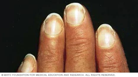 Slide show: 7 fingernail problems not to ignore - Mayo Clinic