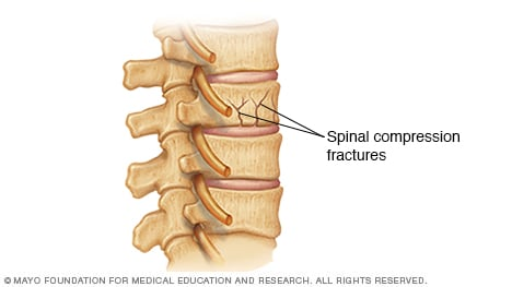Illustration of spinal compression fractures