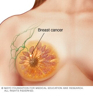 Illustration of stage I breast cancer