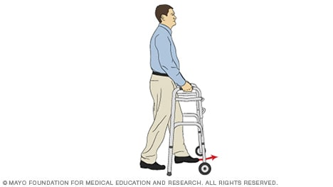 Illustration of a person stepping one foot into a walker