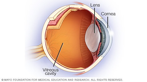 Illustration of cornea, lens and vitreous cavity