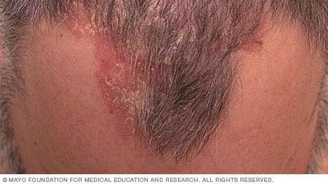 plaque psoriasis scalp