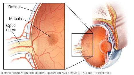 Illustration of optic nerve and retina