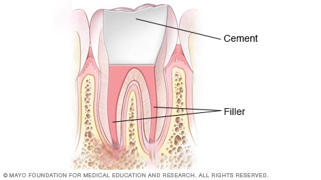 Illustration showing pulp chambers and root canal filled