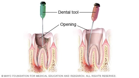 Illustration showing removal of decayed pulp during root canal