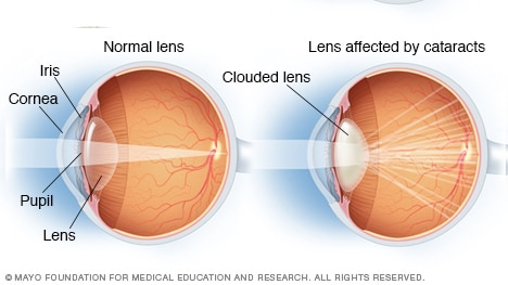 A normal lens and a lens affected by cataracts