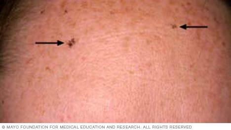 Image of solar lentigines on the forehead