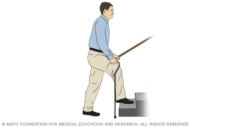 A person using stairs with a cane