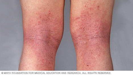 rash like bumps on arms and legs