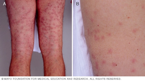 Slide Show Common Skin Rashes Mayo Clinic