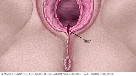 Illustration of a first-degree vaginal tear