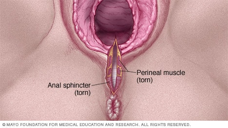 Illustration of a third-degree vaginal tear