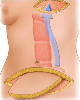 Breast reconstruction surgeon