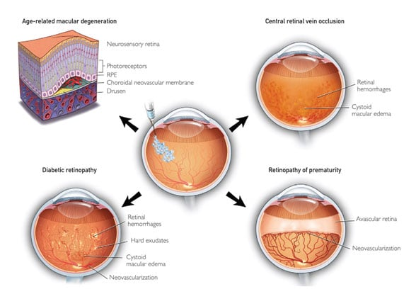 Image depicting common indications for intraocular anti-VEGF injections