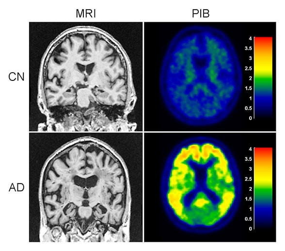 MRI scan of brain, when compared with PET scan, provides complimentary information.