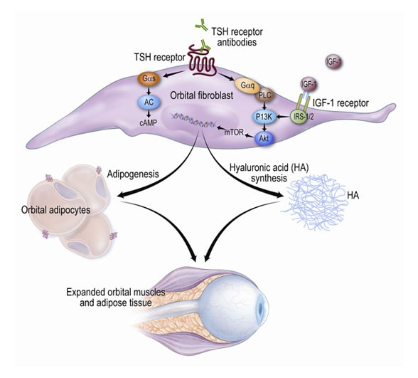 Graphic depicting the role of the thyrotropin (TSH) receptor in the immunopathogenesis of GO