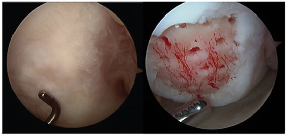 Post-microfracture image of well-contained cartilage defect